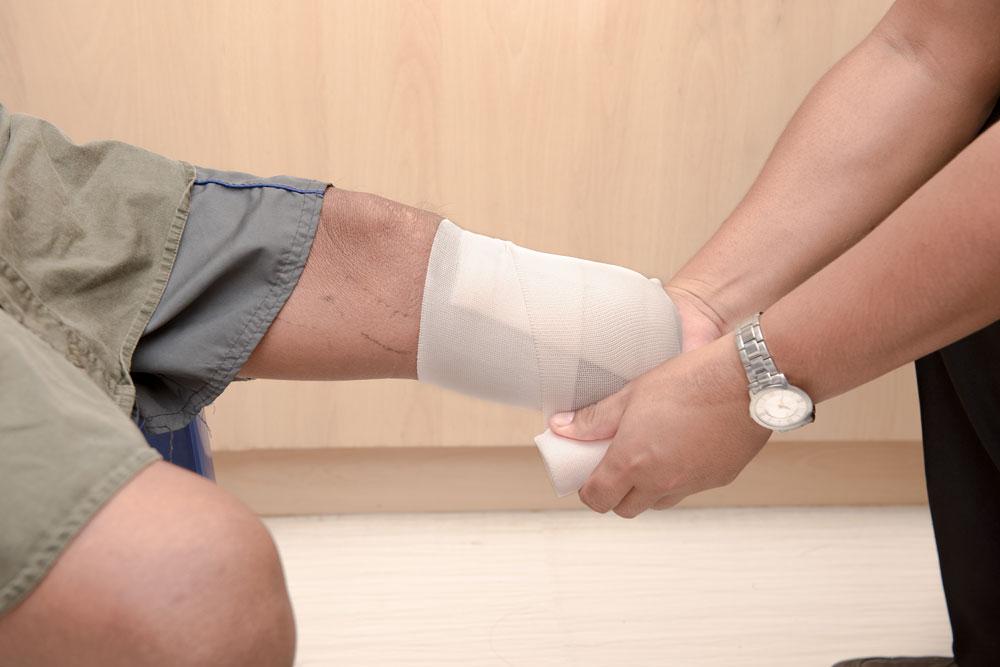 Below knee stump bandaging after amputation