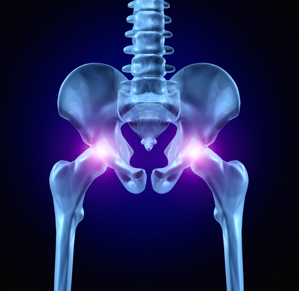 Image demonstrating pain after hip replacement surgery