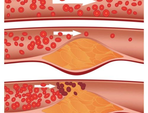 Plaque Build-up In Your Arteries: Can You Reverse It And How