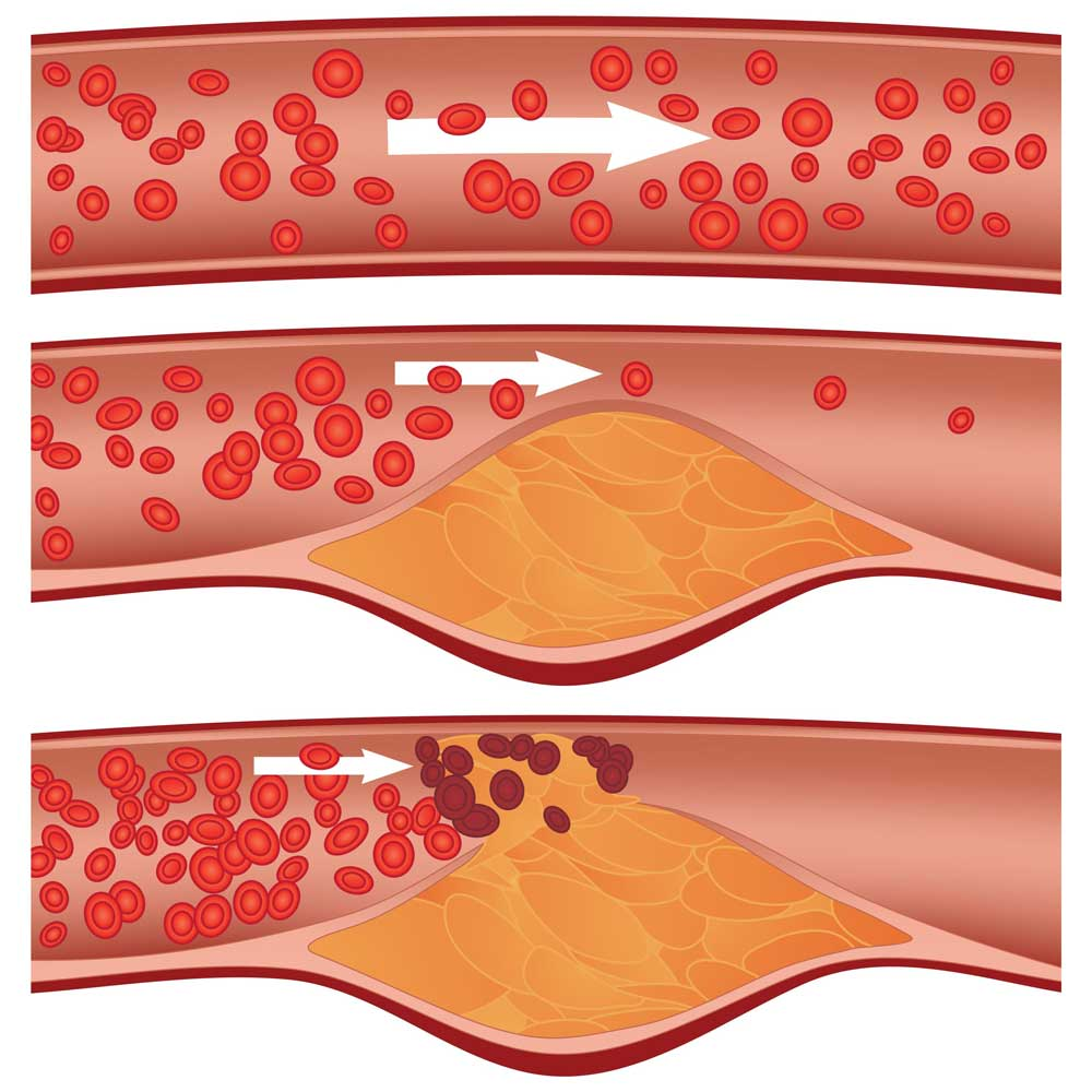 Cholestrol plaque buil-up in arteries visulaization