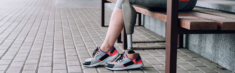 Amputee getting amputation rehab with bionic leg machine